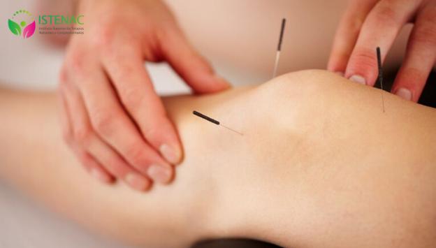 Técnicas de acupuntura para el dolor